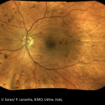 Non proliferative diabetic retinopathy