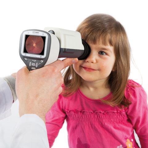 optomed smartscope pro
