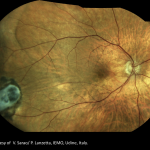 Retinal Detachment TrueColor