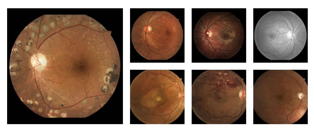 iCare DRS creates high quality retinal images in color