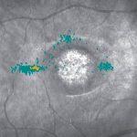 maia-Multiple-PRL-stargardt disease