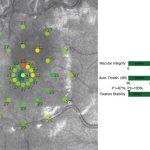 maia-threshold 4-2 strategy