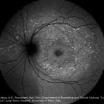 Stargardt-Disease_AF-