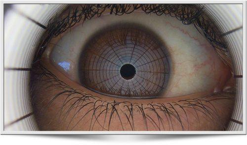 Tearscope - ICP Dry eye analysis