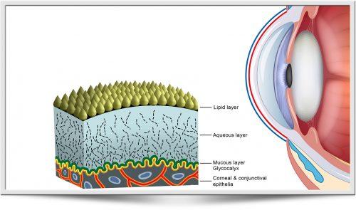 ICP Dry Eye analysis